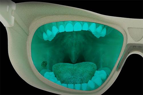 Goccles Auto fluorescence technology
